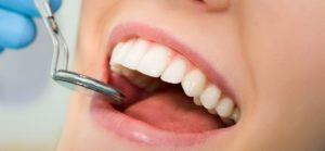 lechenie-zubov-v-minske