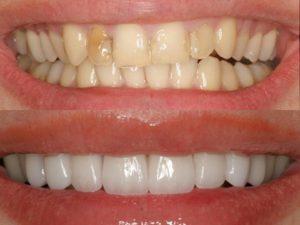 restavraciya-zubov